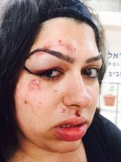 בת אל חוותה אלימות שוטרים